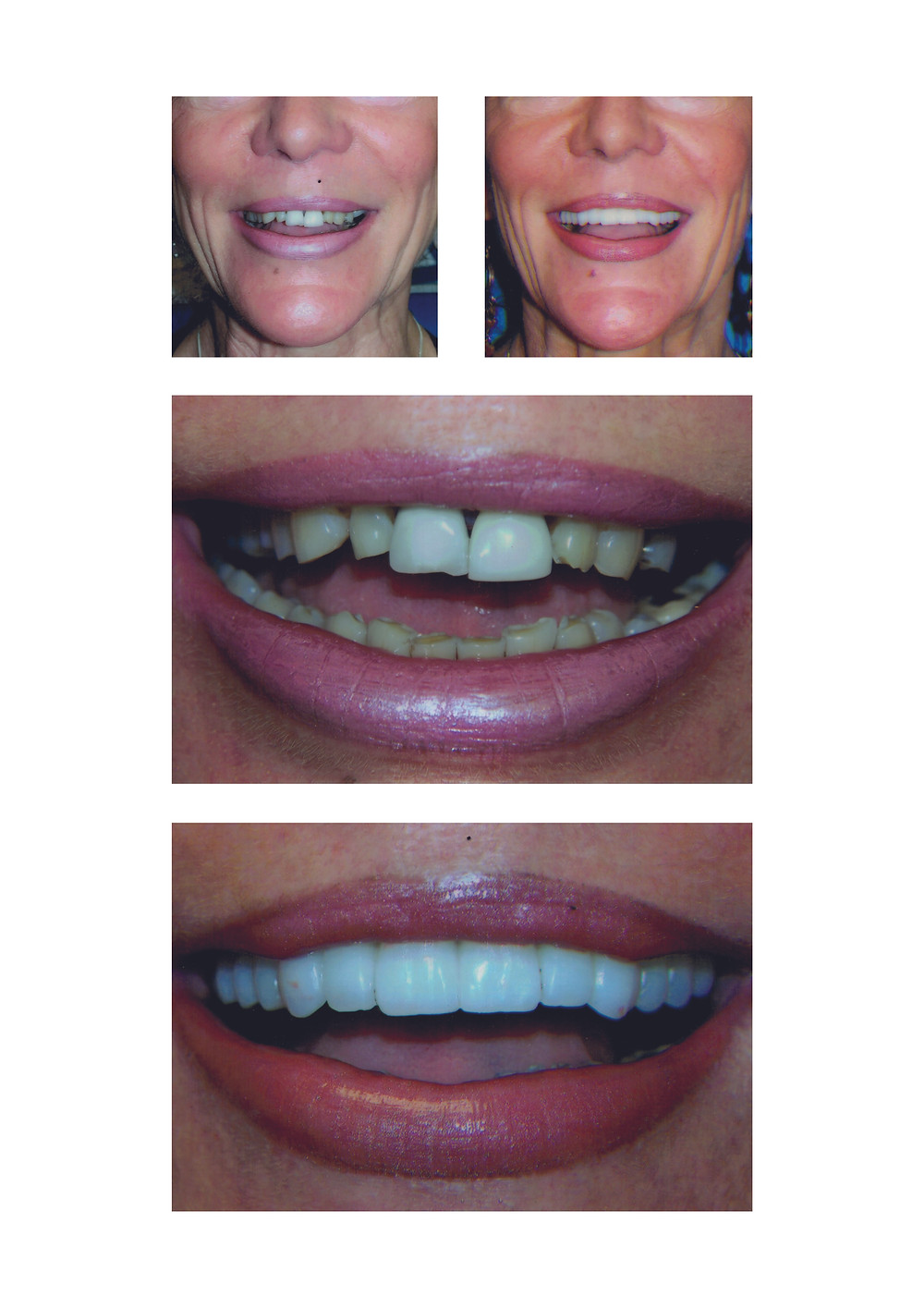 Before and after images of treatment with Dr Sanjiv Rikhi