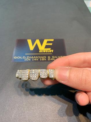 Diamond Prong Set Grillz