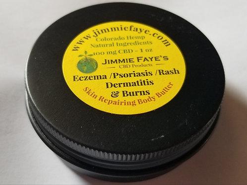 Sweet Sunshine Intense Moisturizer -  Body Butter for Skin Conditions & Burns