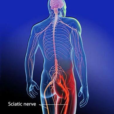 sciatica-s2-sciatic-nerve.webp