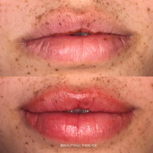 Lip blush tattoo