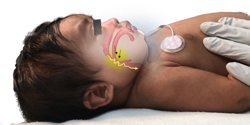 Pediatric  Case Discussion with Dr Vikash Modi