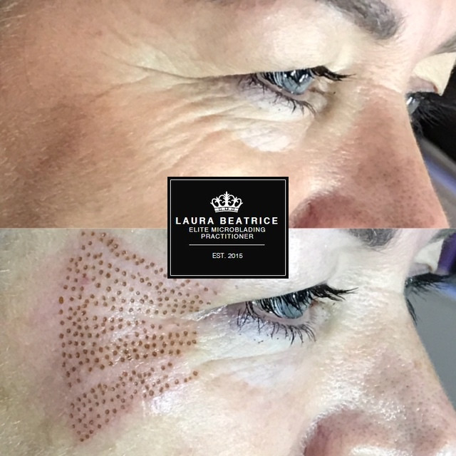 Laura Beatrice Cosmetic Practitioner Solihull Fullscreen Page