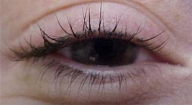 Client #17 - Before Permanent Makeup Eyeliner