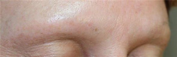 Client #24 - Before Permanent Makeup Eyebrows