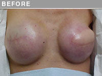 Client #2 - Before 3D Nipple and Areola Repigmentation (Close Up)