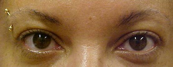 Client #6 - Before Permanent Makeup Eyeliner