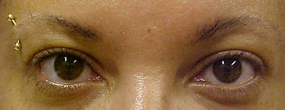 Client #6 - Before Permanent Makeup Eyeliner