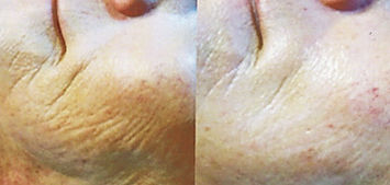 Client #3 - Before & After Rejuvapen Microneedling