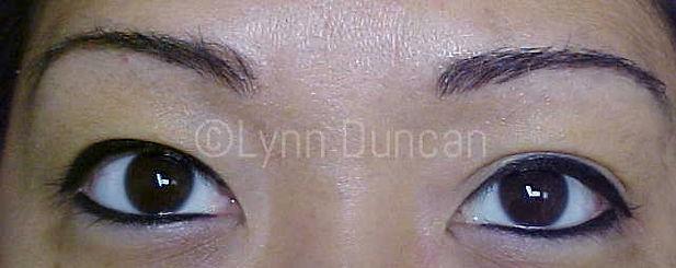 Client #14 - After Permanent Makeup Eyeliner