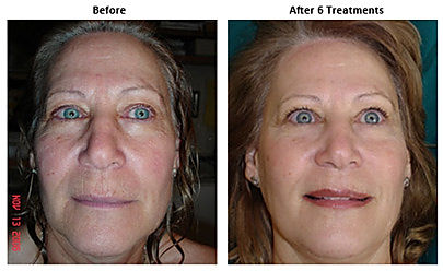 Before & After Facial Sculpting Microcurrent