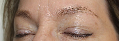 Client #4 - Before Eyebrow Microblading #2