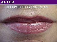 Client #33 - Completed Lips Example #11