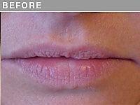 Client #12 - Before Permanent Lips Procedure