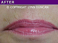 Client #39 - Completed Lips Example #17