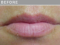 Client #17 - Before Permanent Natural Lip Liner