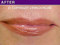 Client #43 - Completed Lips Example #21
