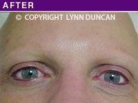 After Trichotillomania Eyelash Permanent Makeup