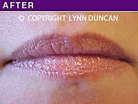 Client #42 - Completed Lips Example #20