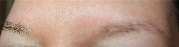 Client #23 - Before Permanent Makeup Eyebrows #2