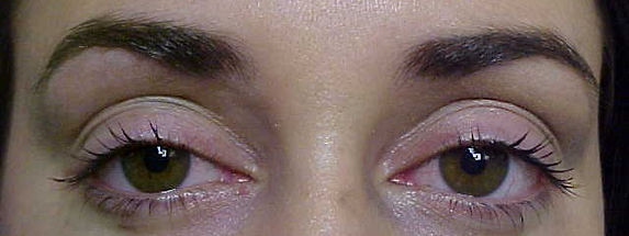 Client #3 - Before Permanent Makeup Eyeliner