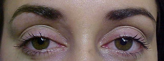 Client #3 - Before Permanent Makeup Eyeliner