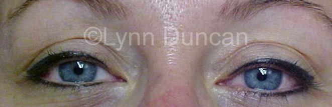 Client #4 - After Permanent Makeup Eyeliner