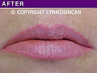 Client #53 - Completed Lips Example #31