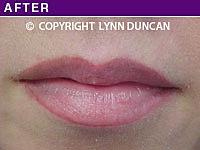 Client #15 - After Natural Lip Liner