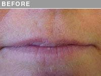 Client #22 - Before Permanent Lips Procedure