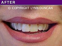 Client #12 - After Permanent Lips Procedure