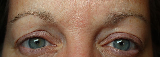 Client #14 - Before Permanent Makeup Eyebrows