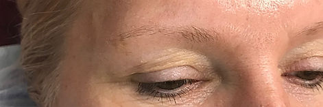 Before Microblading