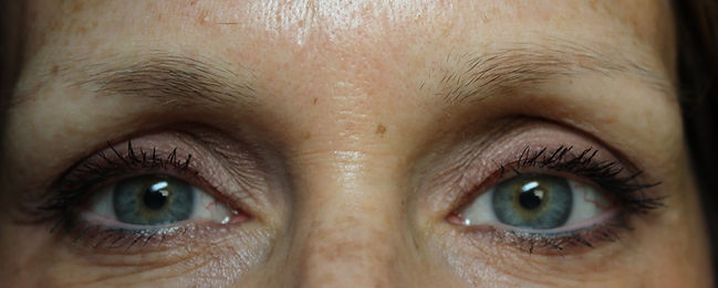 Client #10 - Before Permanent Makeup Eyebrows