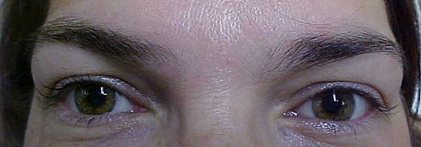 Client #8 - Before Permanent Makeup Eyeliner