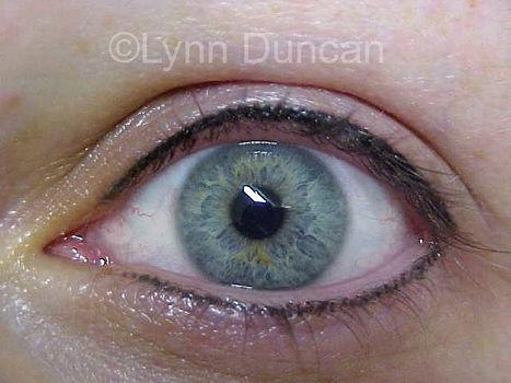 Client #7 - After Permanent Makeup Eyeliner #3