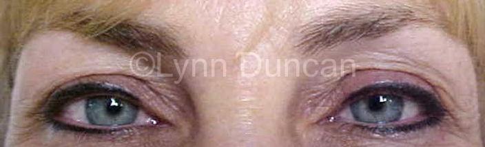 Client #9 - After Permanent Makeup Eyeliner