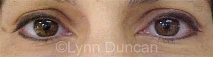 Client #10 - After Permanent Makeup Eyeliner