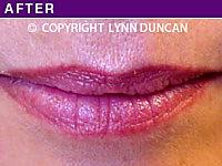 Client #5 - After Permanent Lips Procedure