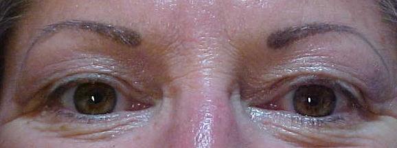 Client #5 - Before Permanent Makeup Eyeliner