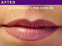 Client #44 - Completed Lips Example #22