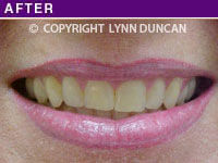 Client #45 - Completed Lips Example #23
