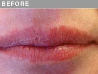 Client #8 - Before Permanent Lips Procedure