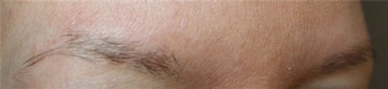 Client #23 - Before Permanent Makeup Eyebrows