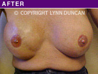 After Areola Repigmentation #2