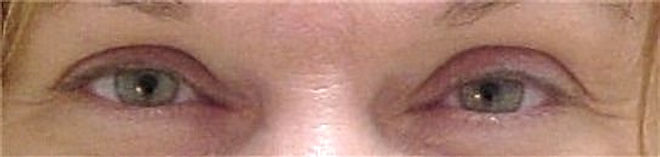 Client #1 - Before Permanent Makeup Eyeliner