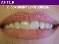Client #30 - Completed Lips Example #8