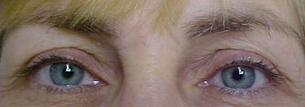 Client #9 - Before Permanent Makeup Eyeliner