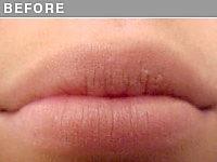 Client #9 - Before Permanent Lips Procedure