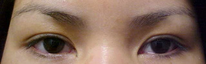 Client #11 - Before Lower Permanent Makeup Eyeliner